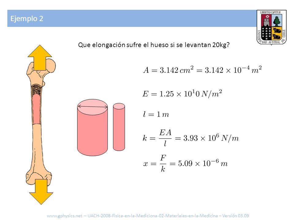 Ejemplo 2 Que elongación sufre el hueso si se levantan 20kg