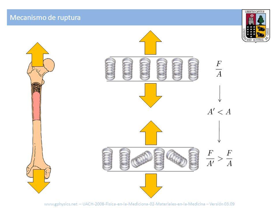 Mecanismo de rupturawww.gphysics.net – UACH-2008-Fisica-en-la-Mediciona-02-Materiales-en-la-Medicina – Versión 03.09.