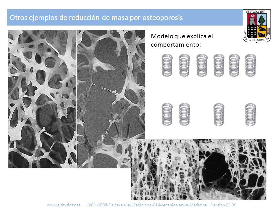 Otros ejemplos de reducción de masa por osteoporosis