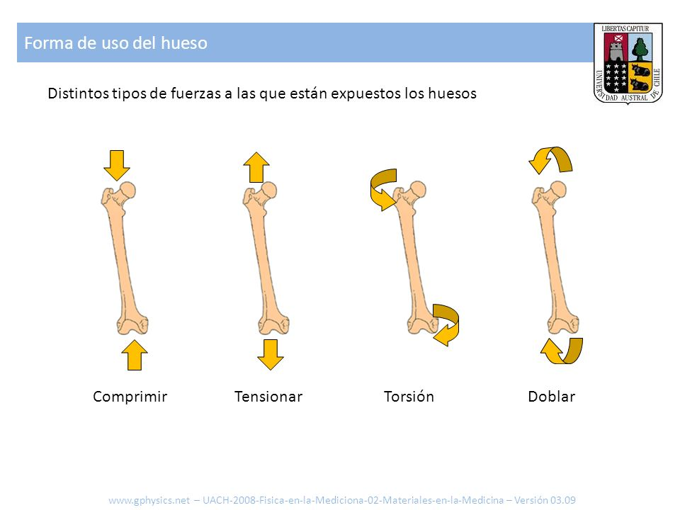 Forma de uso del hueso Distintos tipos de fuerzas a las que están expuestos los huesos. Comprimir.