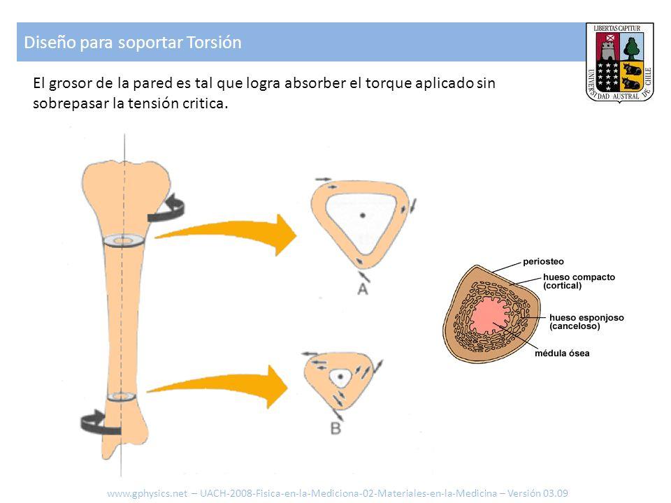 Diseño para soportar Torsión