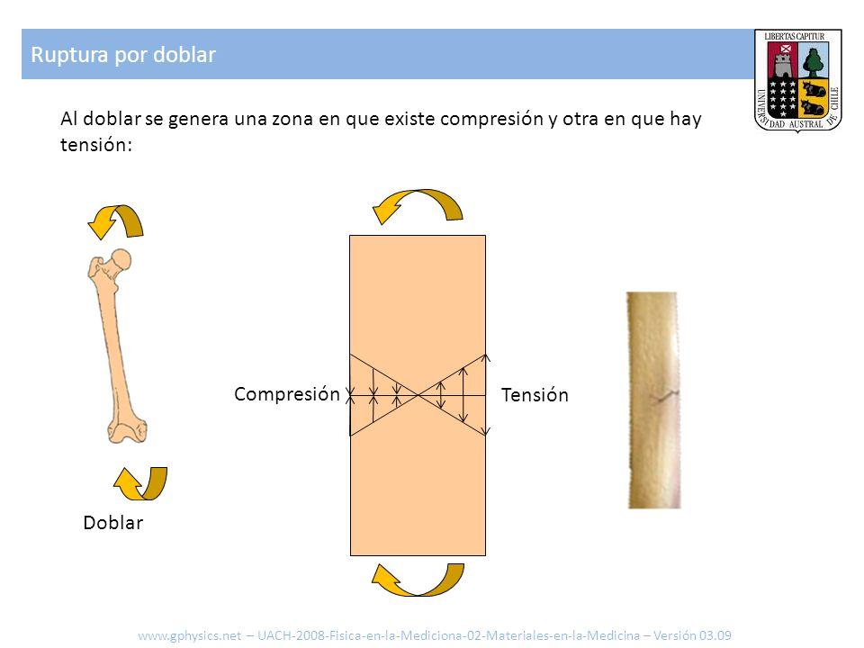 Ruptura por doblarAl doblar se genera una zona en que existe compresión y otra en que hay tensión: Compresión.