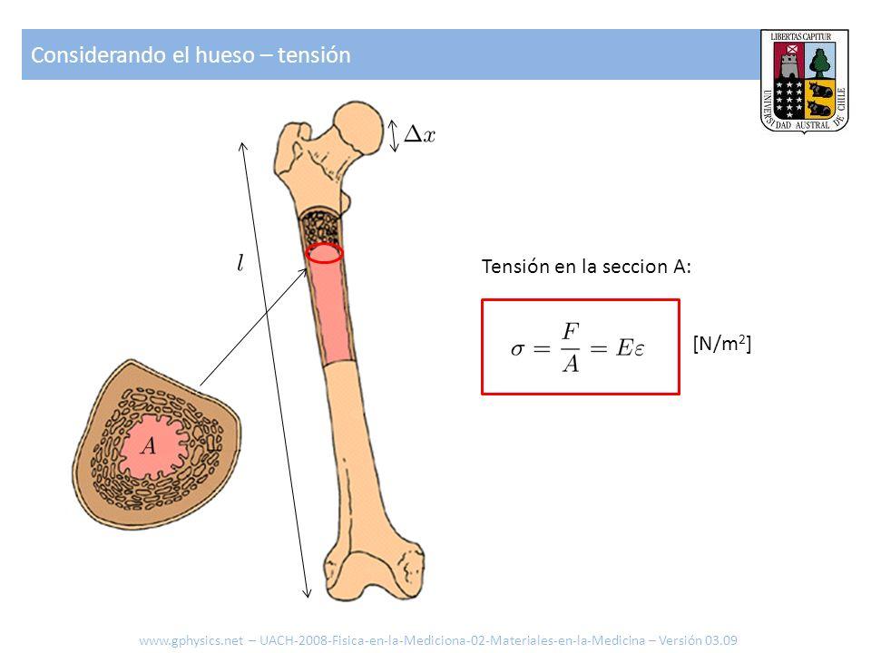 Considerando el hueso – tensión