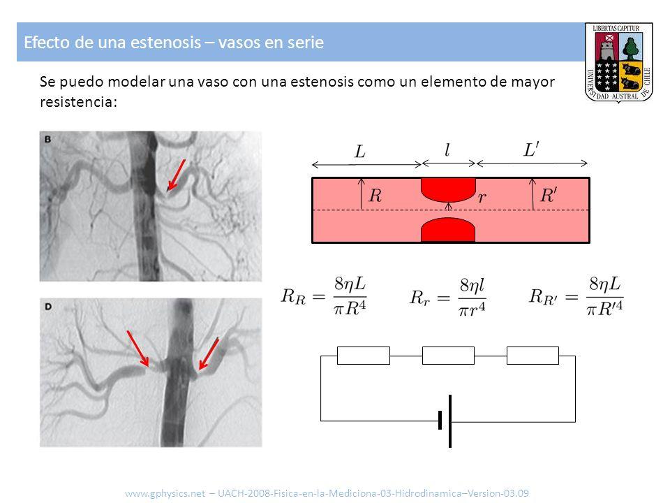Efecto de una estenosis – vasos en serie