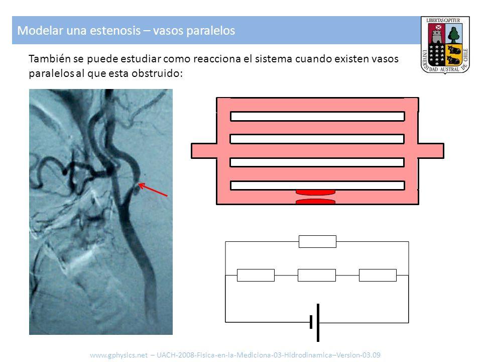 Modelar una estenosis – vasos paralelos