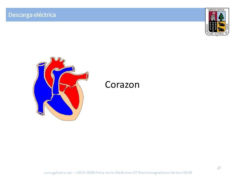 Corazon Descarga eléctrica