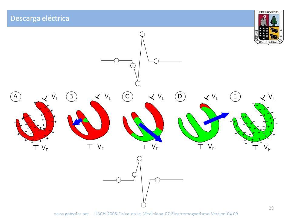 Descarga eléctrica A VL B ┴ VL C ┴ VL D VL E VL ┴ ┴ ┴ ┴ ┴ VF ┴ VF ┴ VF