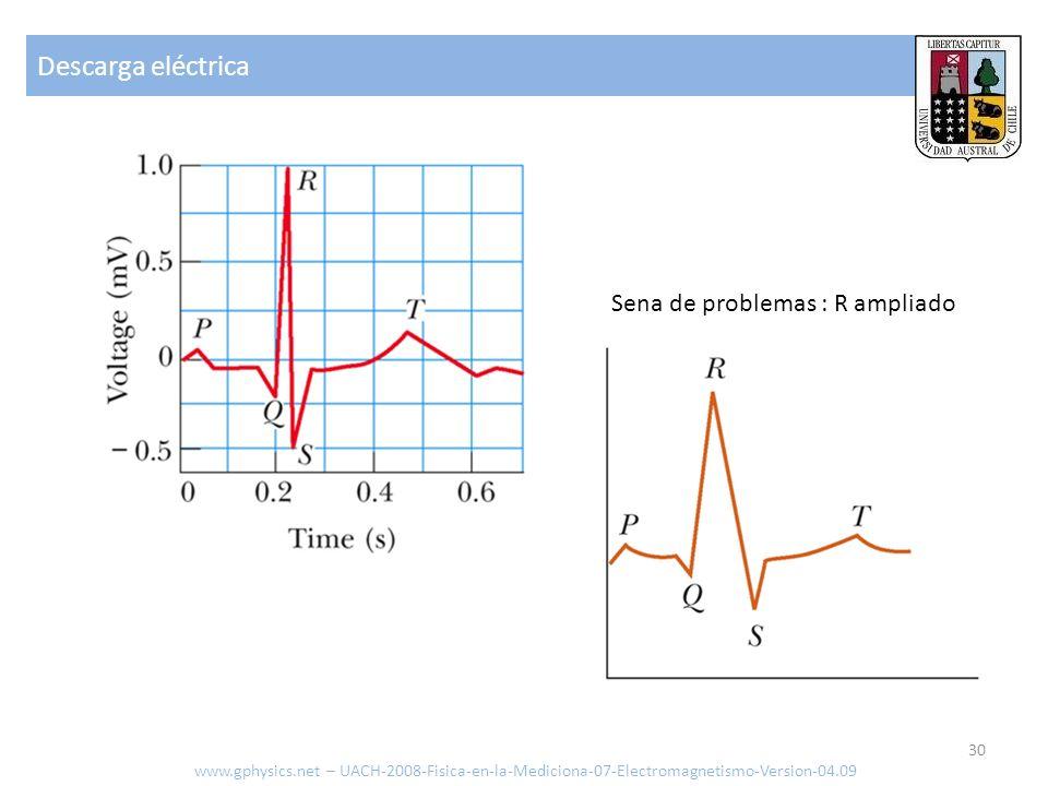 Descarga eléctrica Sena de problemas : R ampliado