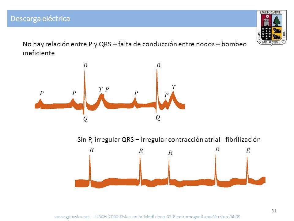 Descarga eléctricaNo hay relación entre P y QRS – falta de conducción entre nodos – bombeo ineficiente.