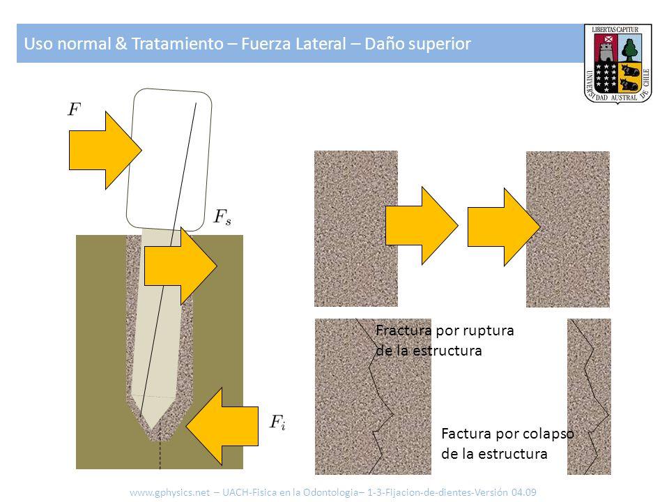 Uso normal & Tratamiento – Fuerza Lateral – Daño superior