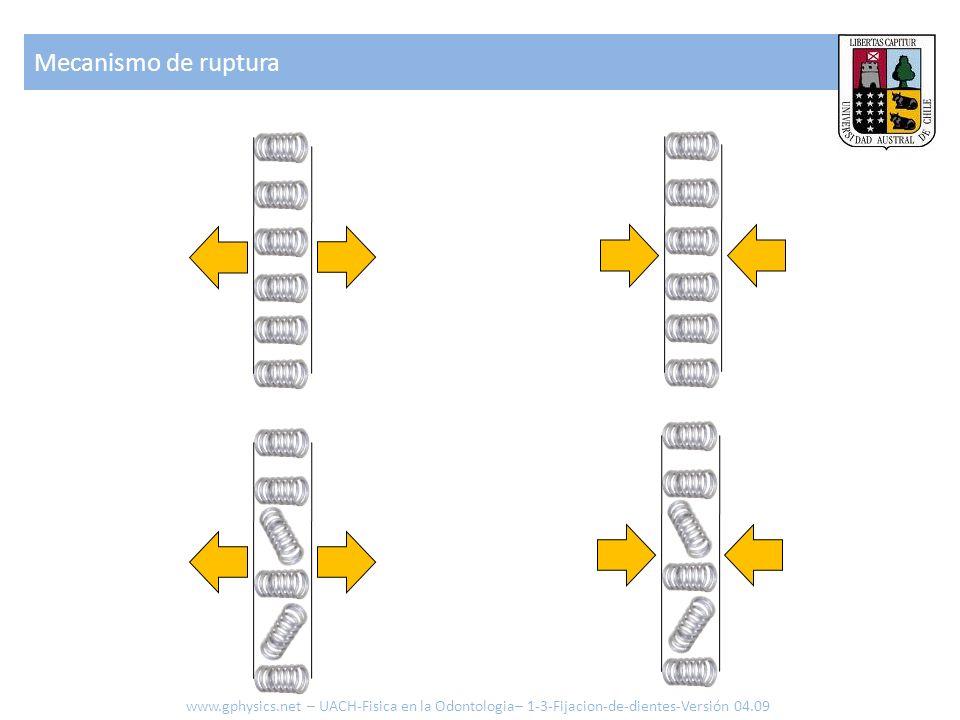 Mecanismo de ruptura www.gphysics.net – UACH-Fisica en la Odontologia– 1-3-Fijacion-de-dientes-Versión 04.09.