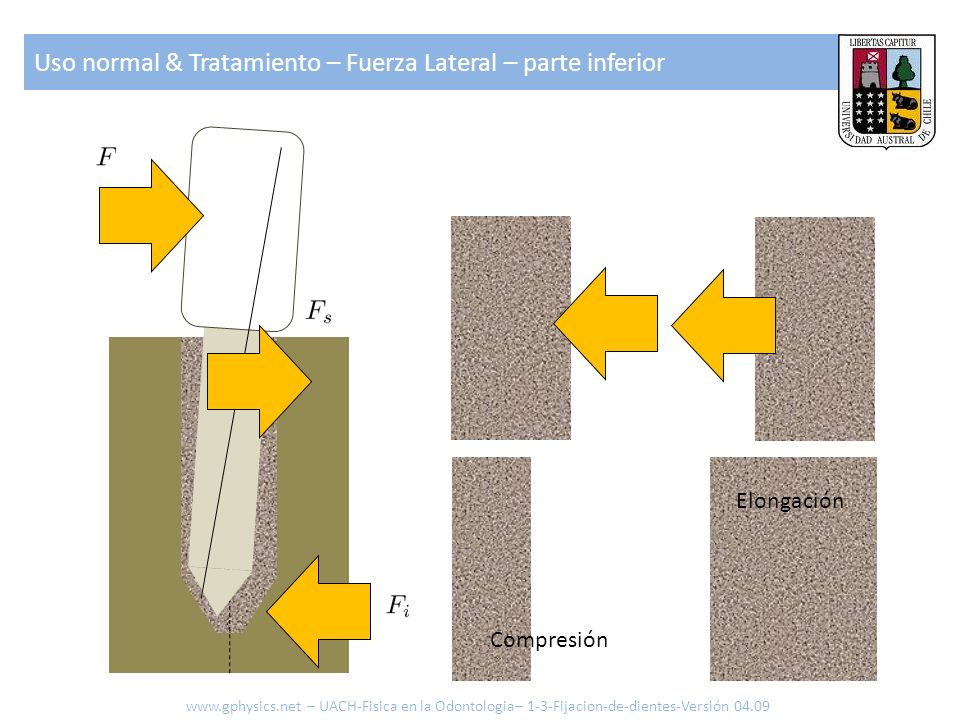 Uso normal & Tratamiento – Fuerza Lateral – parte inferior