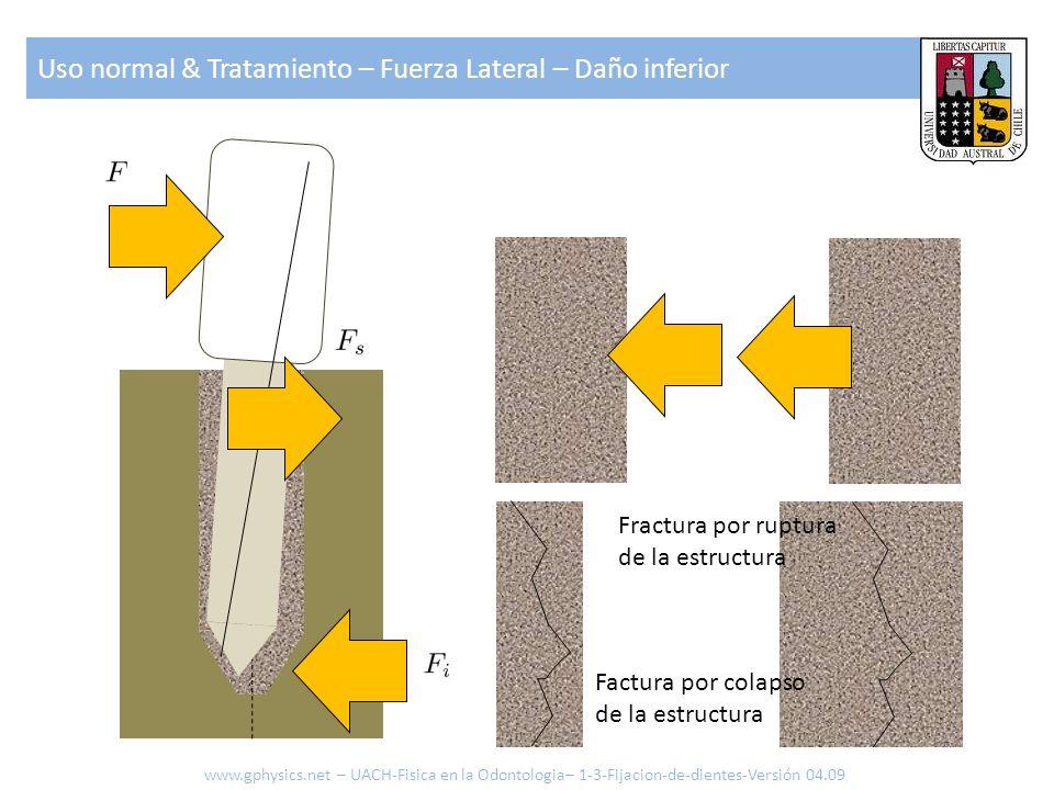 Uso normal & Tratamiento – Fuerza Lateral – Daño inferior