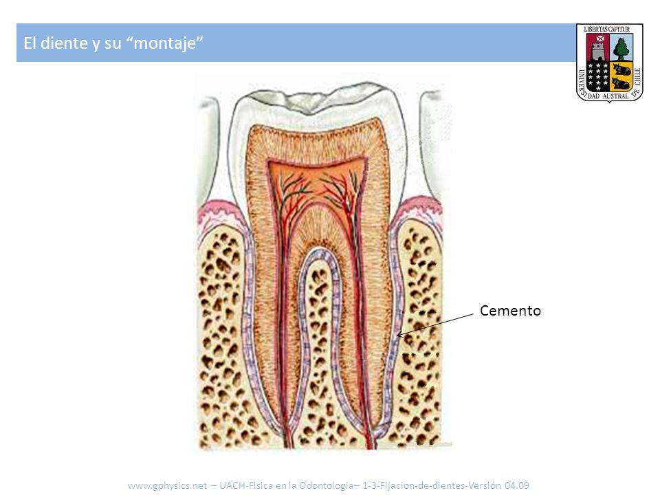 El diente y su montaje
