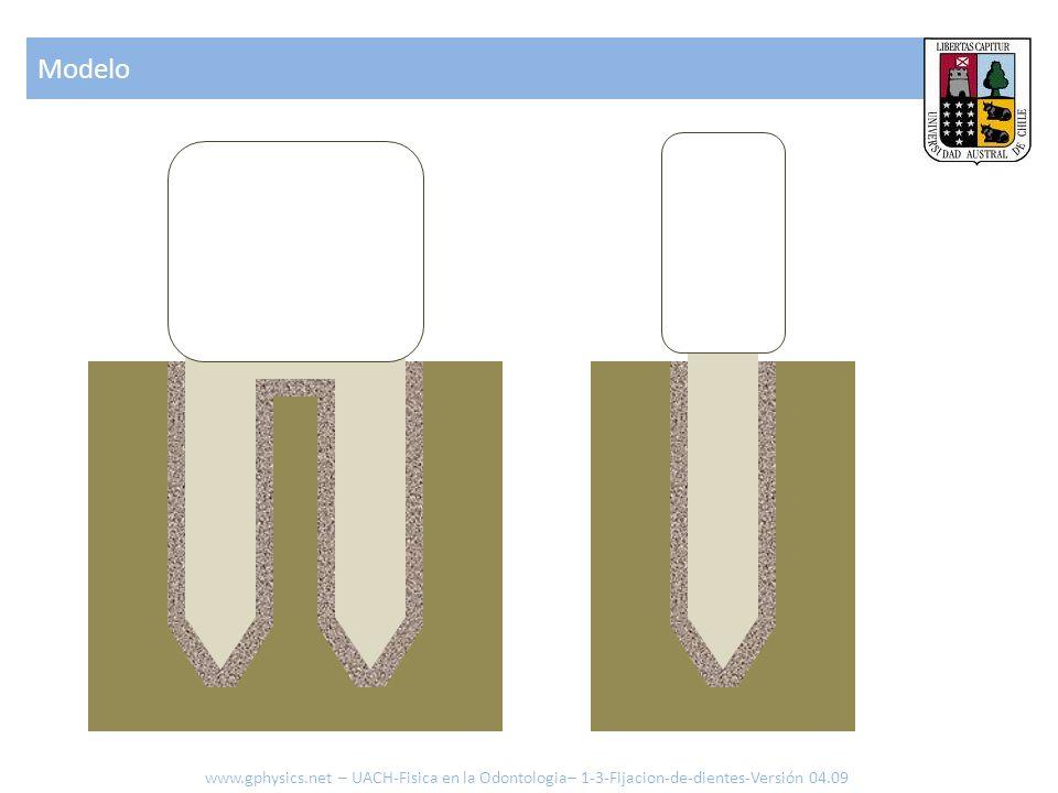 Modelo www.gphysics.net – UACH-Fisica en la Odontologia– 1-3-Fijacion-de-dientes-Versión 04.09