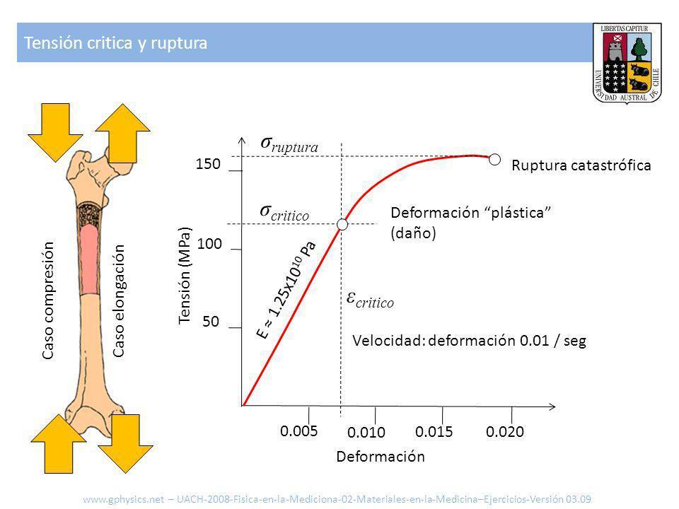 σruptura σcritico εcritico Tensión critica y ruptura 150