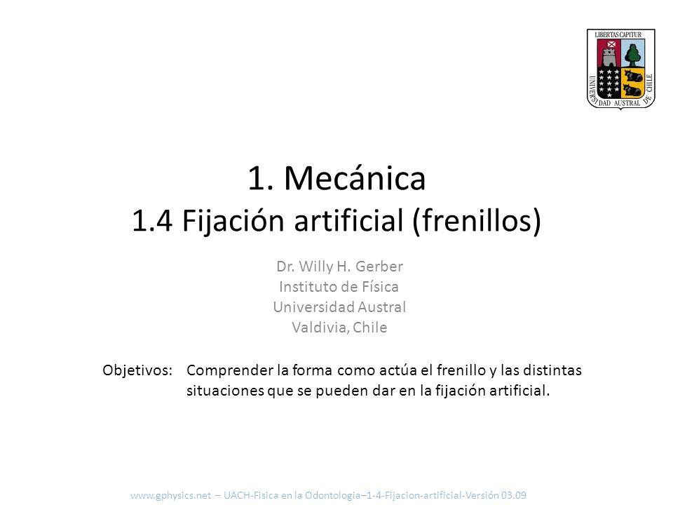 1. Mecánica 1.4 Fijación artificial (frenillos)