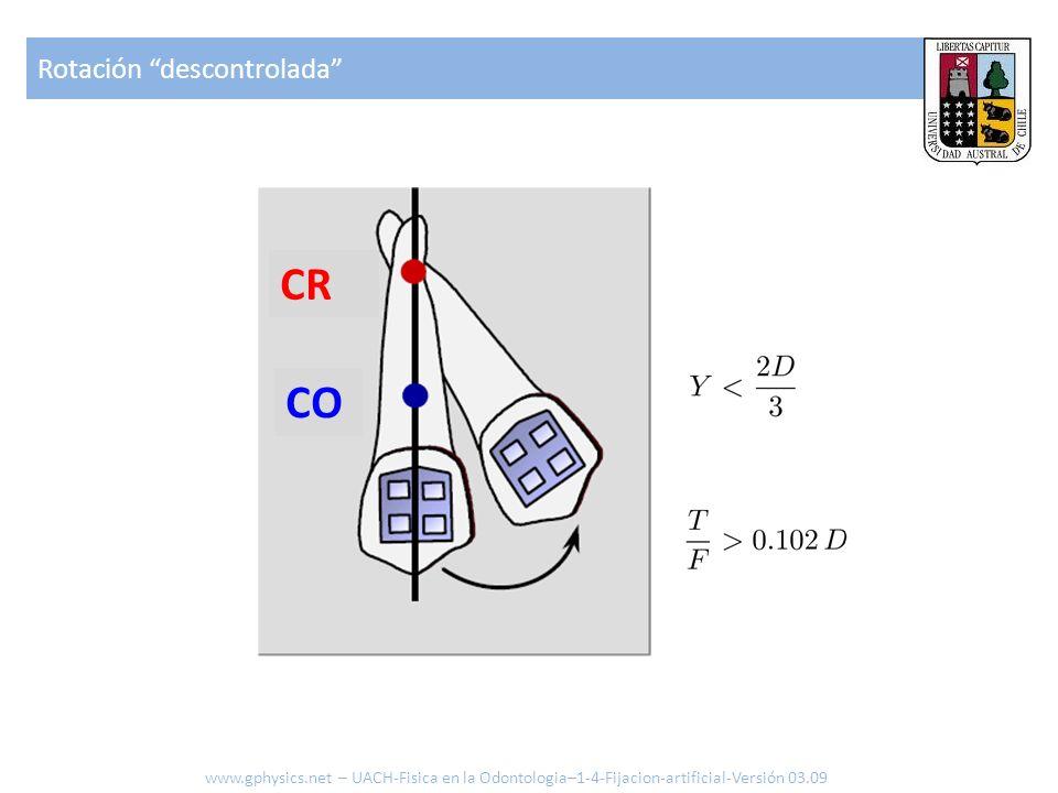 CR CO Rotación descontrolada