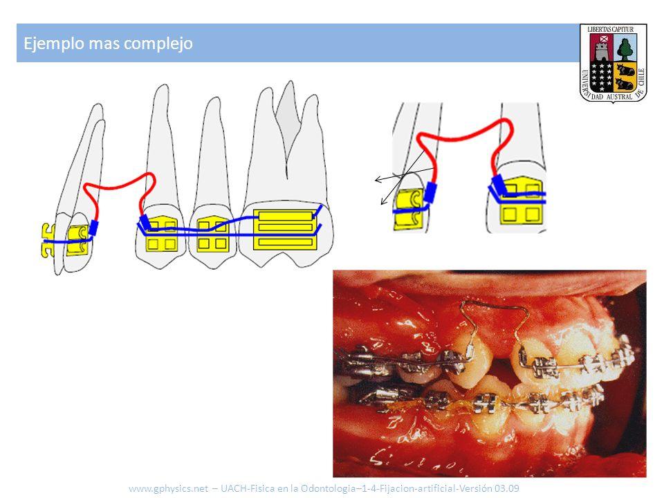 Ejemplo mas complejo www.gphysics.net – UACH-Fisica en la Odontologia–1-4-Fijacion-artificial-Versión 03.09.