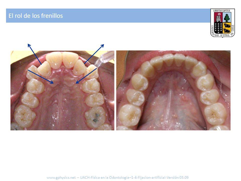 El rol de los frenillos www.gphysics.net – UACH-Fisica en la Odontologia–1-4-Fijacion-artificial-Versión 03.09.