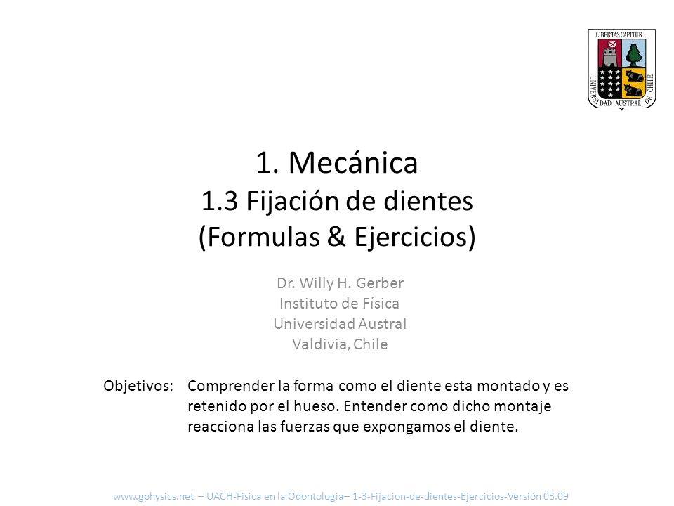 1. Mecánica 1.3 Fijación de dientes (Formulas & Ejercicios)
