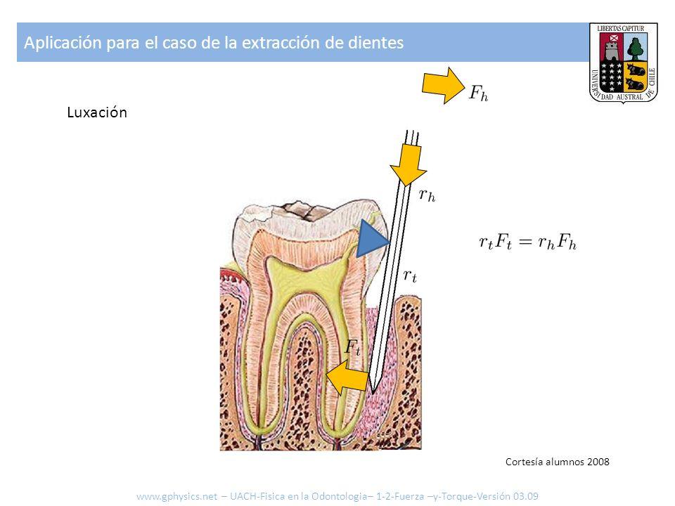 Aplicación para el caso de la extracción de dientes