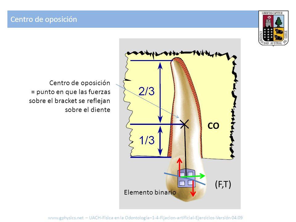 CO (F,T) Centro de oposición Centro de oposición