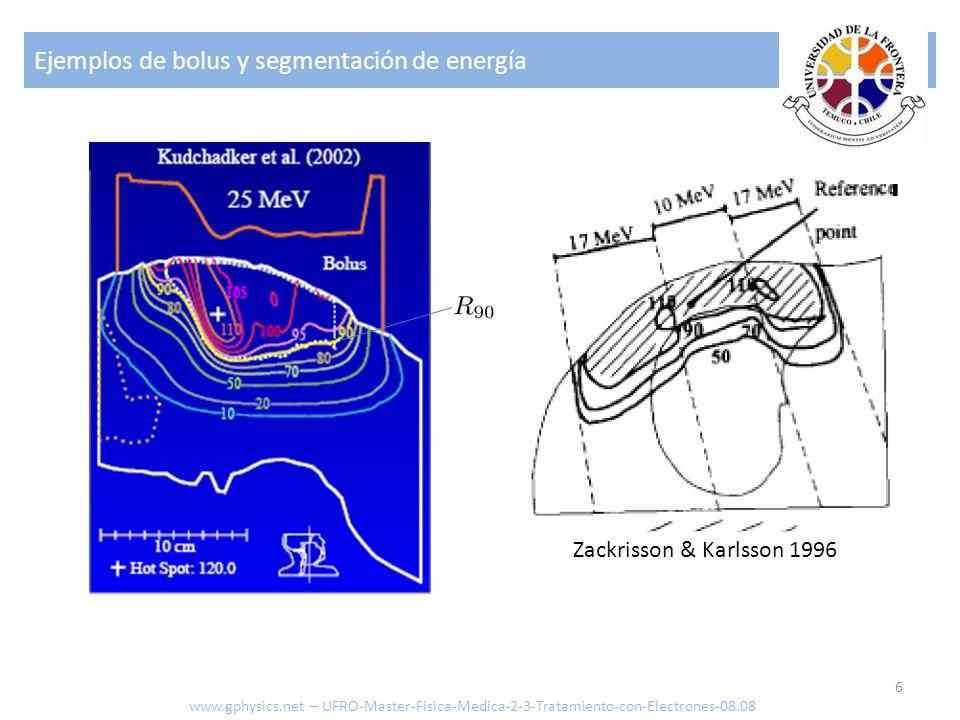 Ejemplos de bolus y segmentación de energía