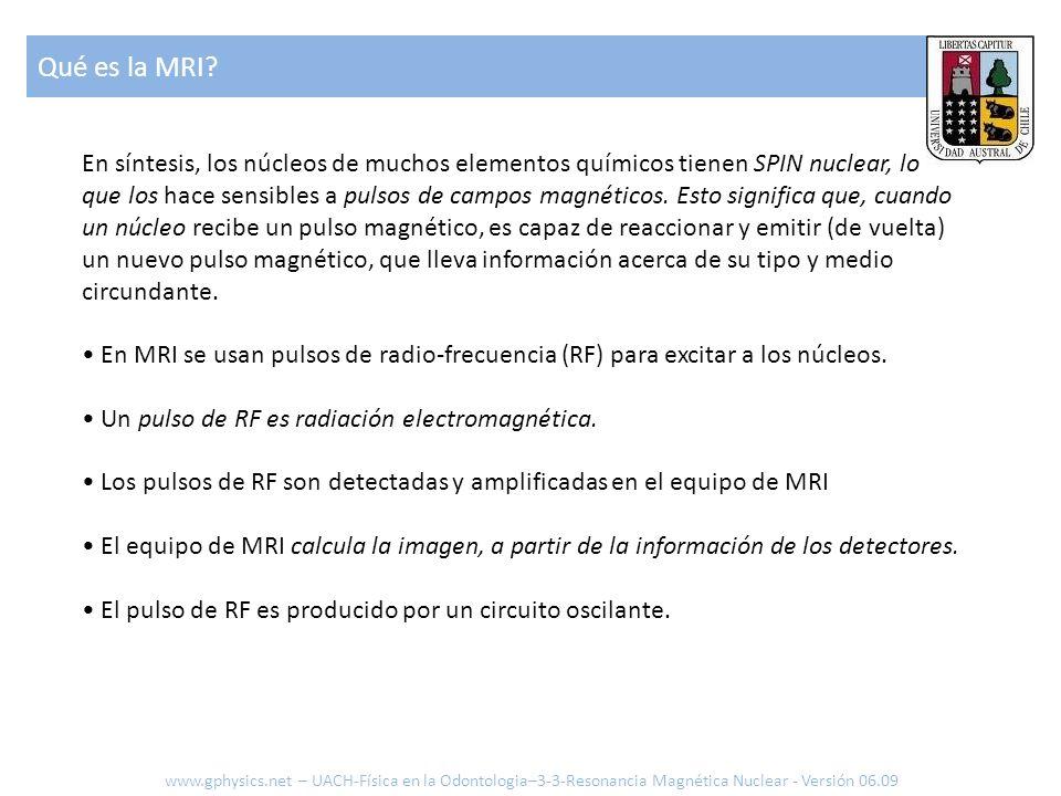 Qué es la MRI