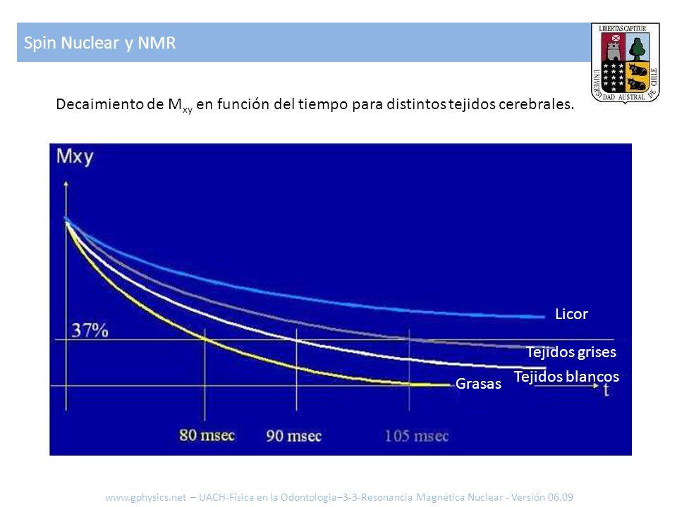 Spin Nuclear y NMR Decaimiento de Mxy en función del tiempo para distintos tejidos cerebrales. Licor.