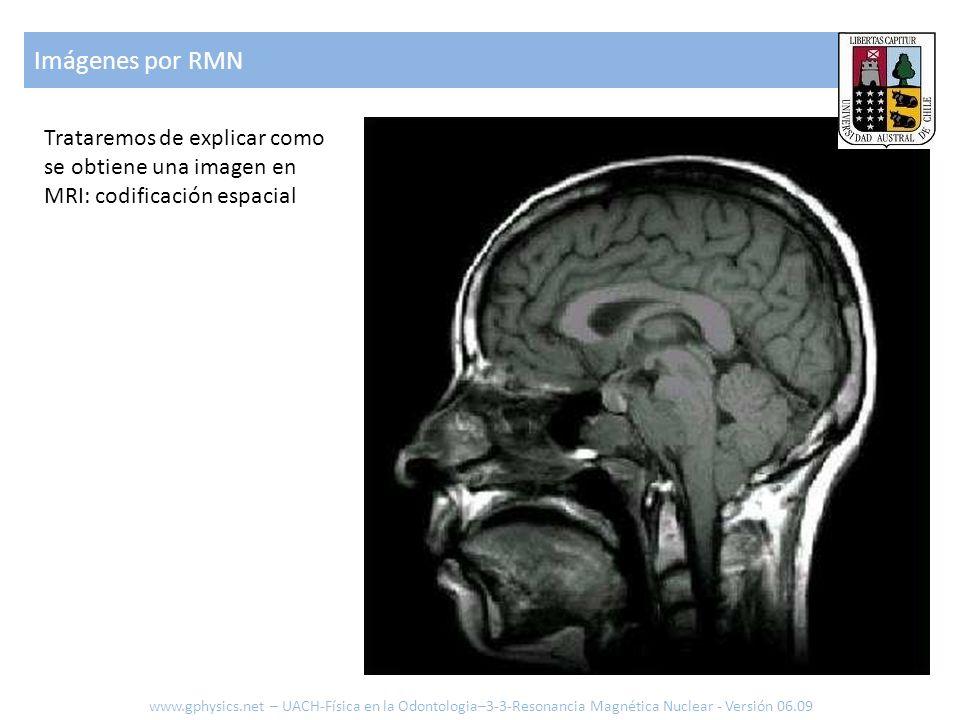 Imágenes por RMN Trataremos de explicar como se obtiene una imagen en MRI: codificación espacial.