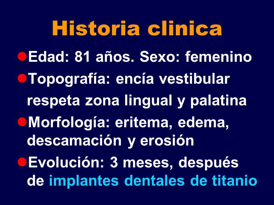 Historia clinica Edad: 81 años. Sexo: femenino