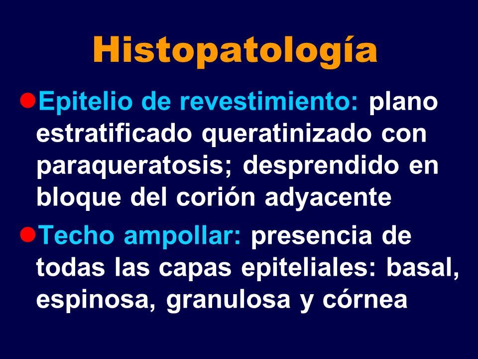 Histopatología Epitelio de revestimiento: plano estratificado queratinizado con paraqueratosis; desprendido en bloque del corión adyacente.
