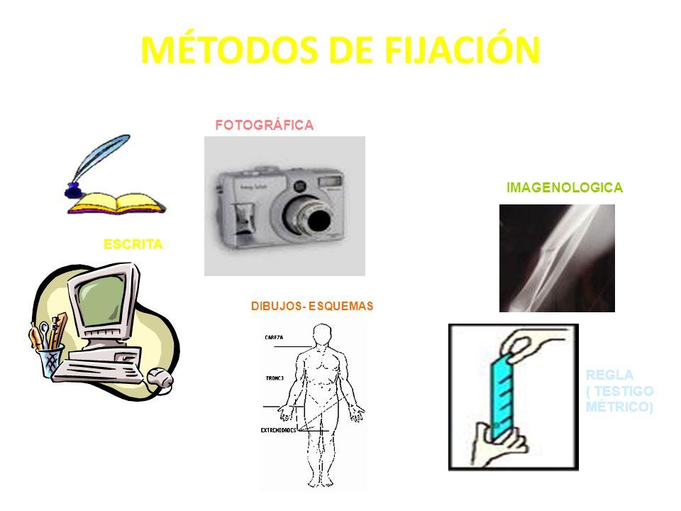 MÉTODOS DE FIJACIÓN FOTOGRÁFICA IMAGENOLOGICA ESCRITA