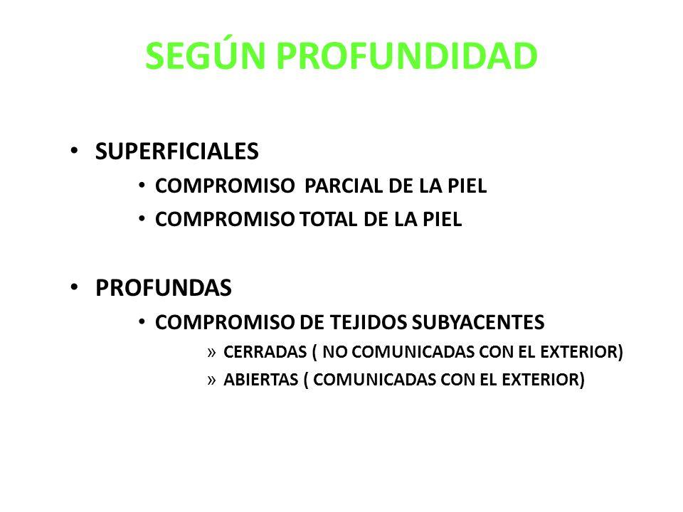 SEGÚN PROFUNDIDAD SUPERFICIALES PROFUNDAS