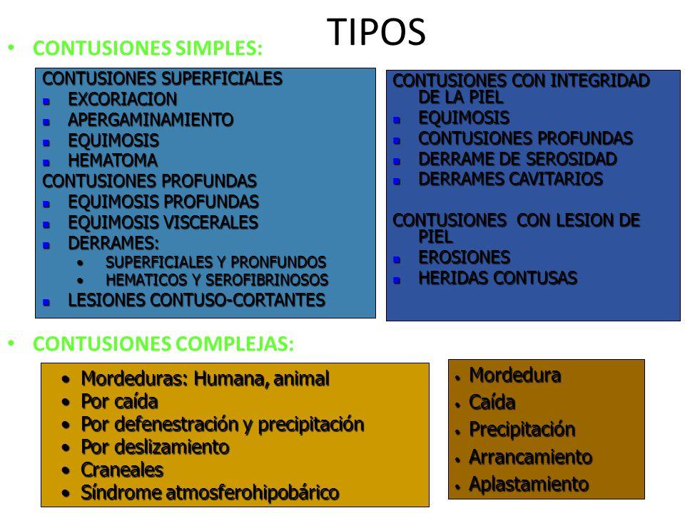 TIPOS CONTUSIONES SIMPLES: CONTUSIONES COMPLEJAS: Mordedura