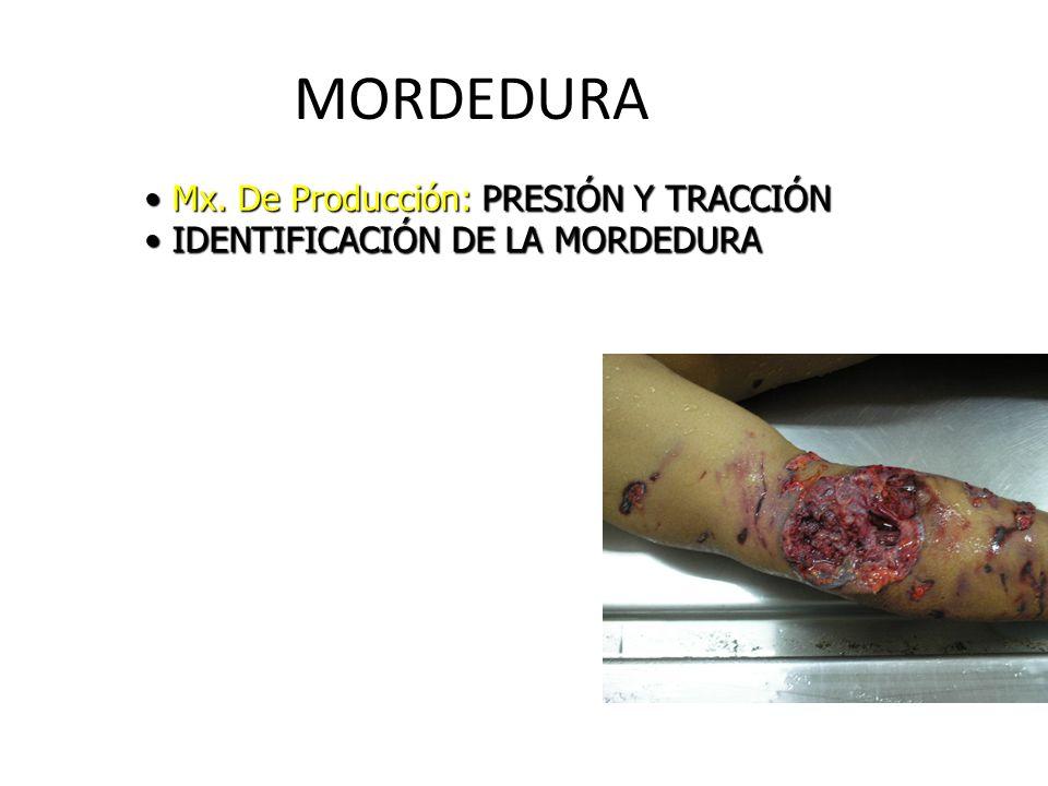 MORDEDURA Mx. De Producción: PRESIÓN Y TRACCIÓN