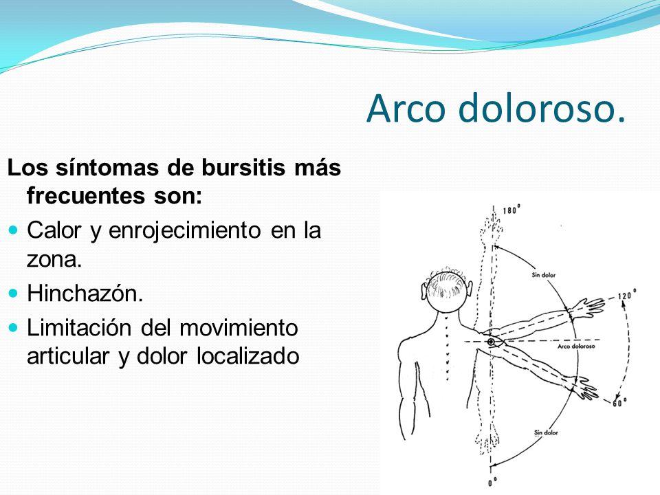 Arco doloroso. Los síntomas de bursitis más frecuentes son: