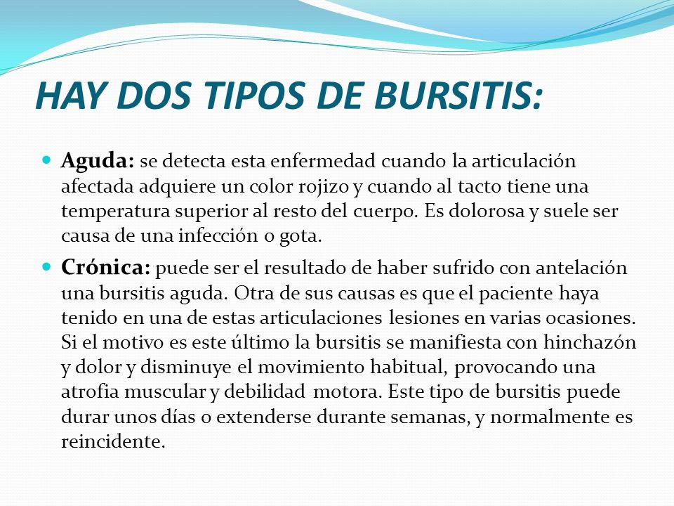 HAY DOS TIPOS DE BURSITIS: