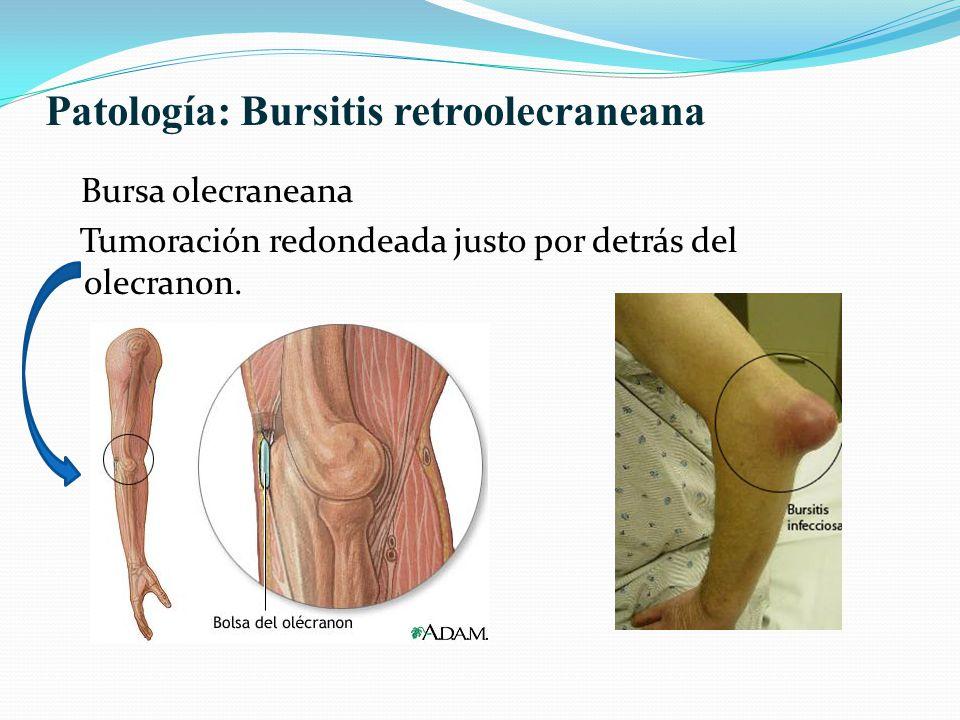 Patología: Bursitis retroolecraneana
