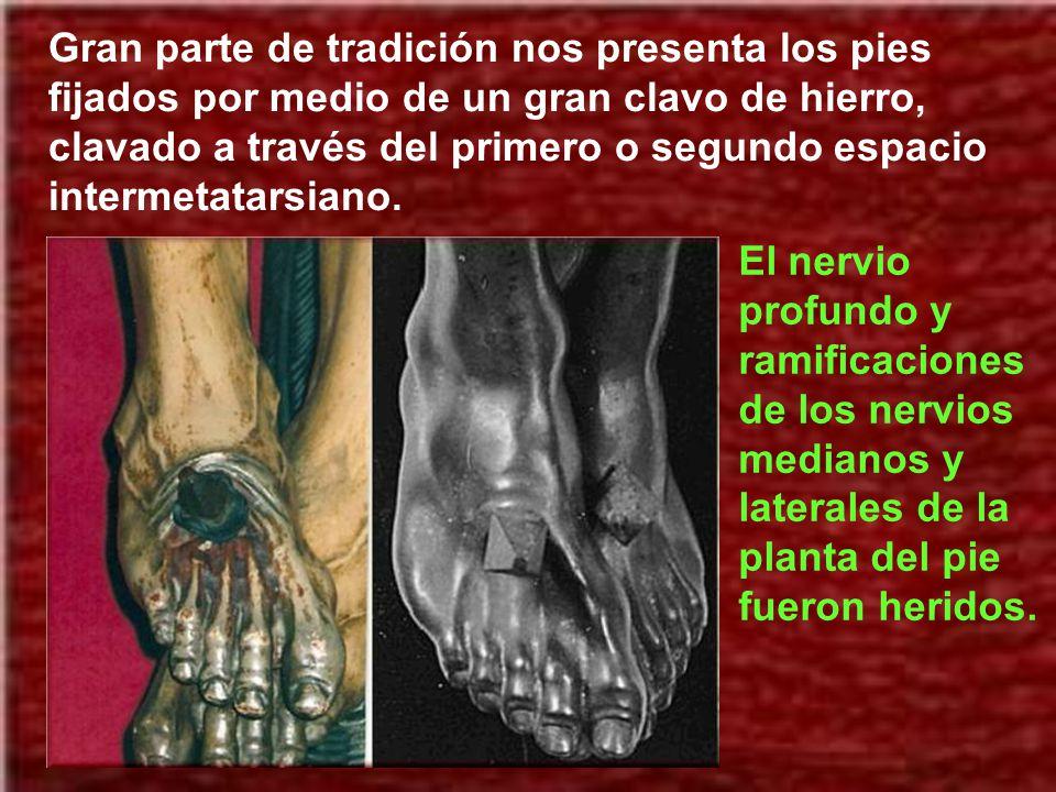 Gran parte de tradición nos presenta los pies fijados por medio de un gran clavo de hierro, clavado a través del primero o segundo espacio intermetatarsiano.