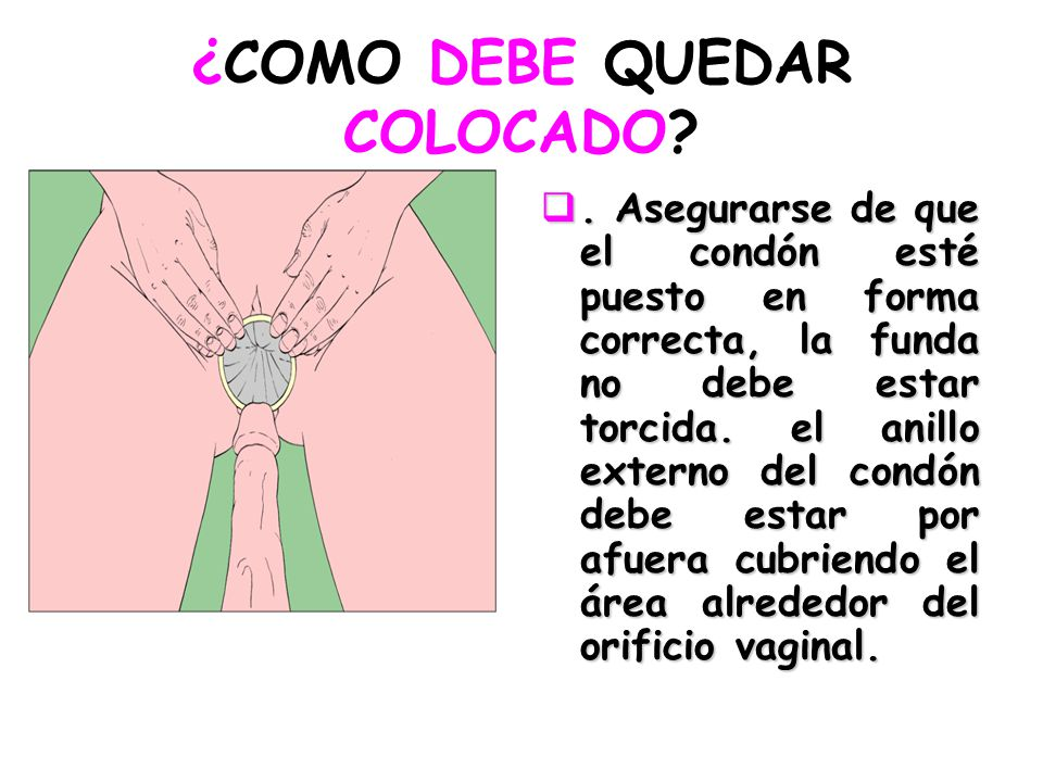 ¿COMO DEBE QUEDAR COLOCADO