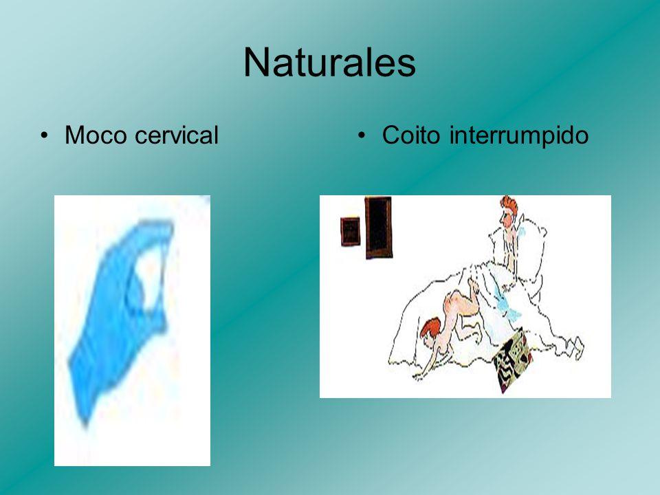 Naturales Moco cervical Coito interrumpido