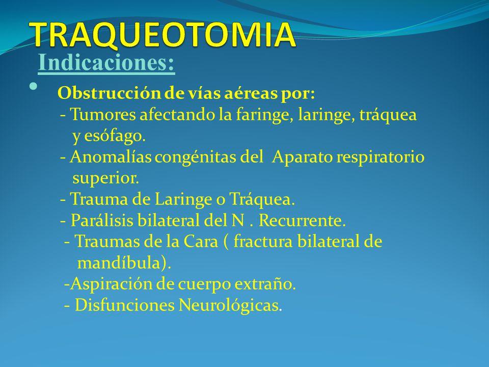 TRAQUEOTOMIA Indicaciones: Obstrucción de vías aéreas por: