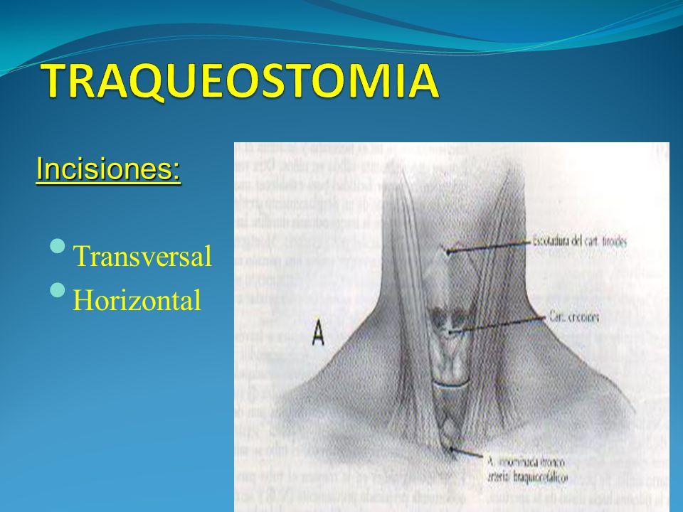 TRAQUEOSTOMIA Incisiones: Transversal Horizontal