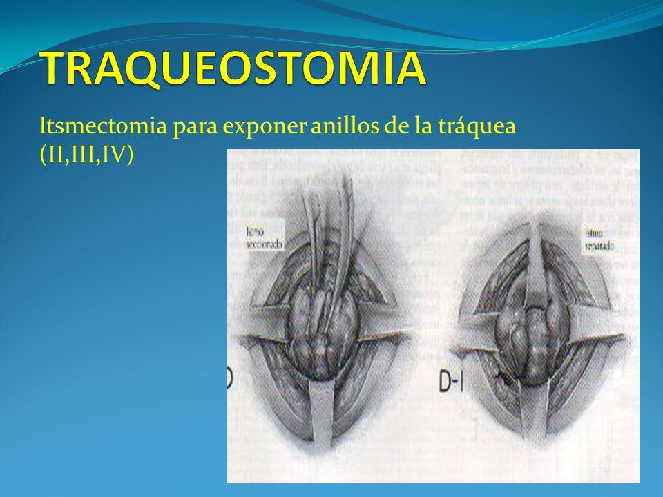 Itsmectomia para exponer anillos de la tráquea (II,III,IV)