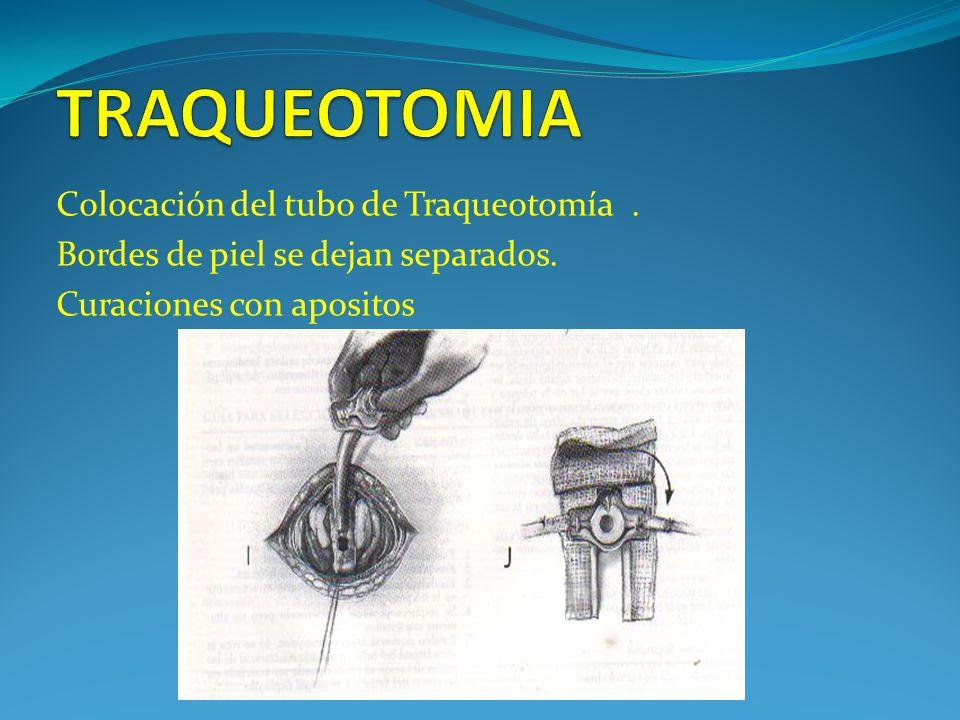 TRAQUEOTOMIA Colocación del tubo de Traqueotomía .