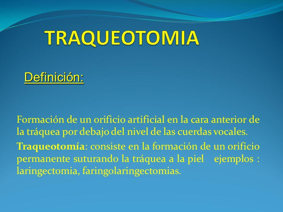 TRAQUEOTOMIA Definición: