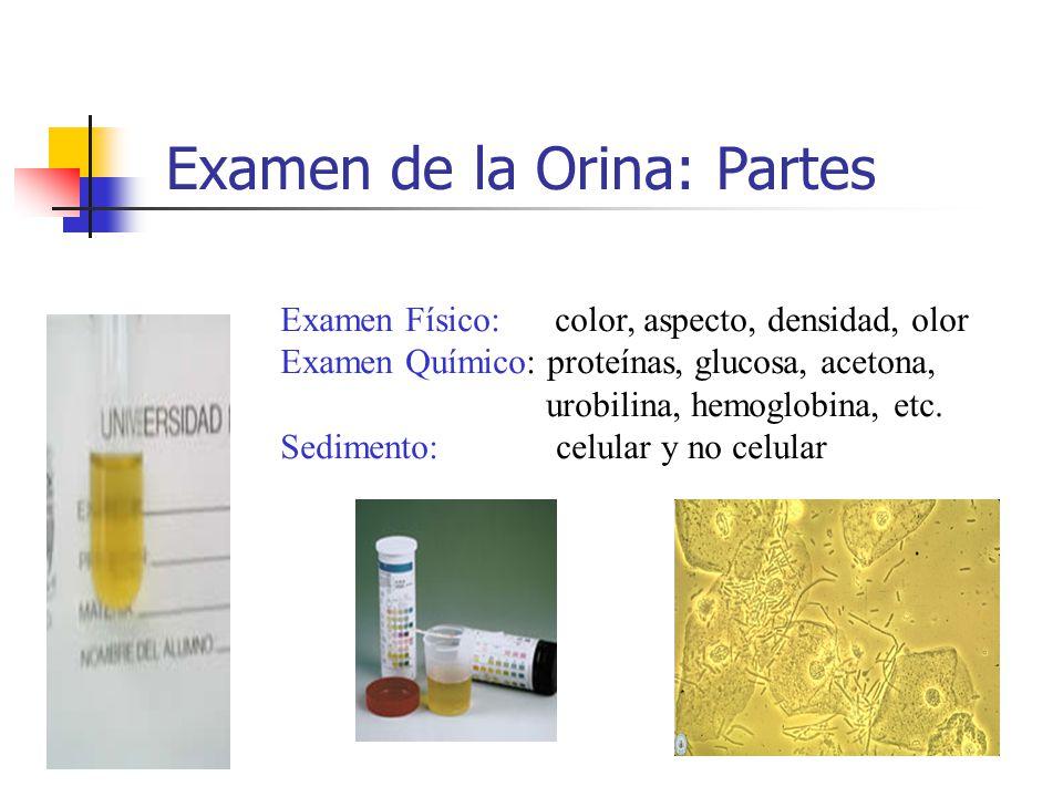 Examen de la Orina: Partes