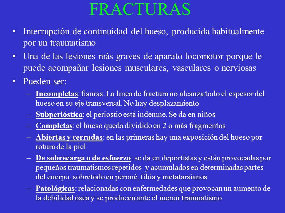 FRACTURAS Interrupción de continuidad del hueso, producida habitualmente por un traumatismo.